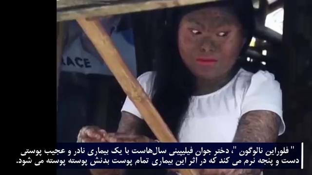 حقایق جالب جدید-دختری با پوست مار