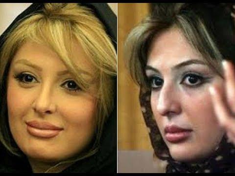 بازیگران مشهور ایرانی قبل از عمل بینی-1